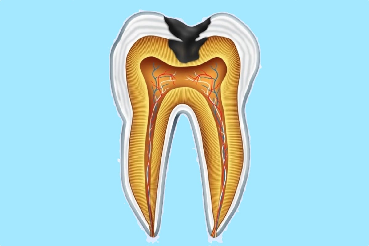 Erosion of a tooth due to acid